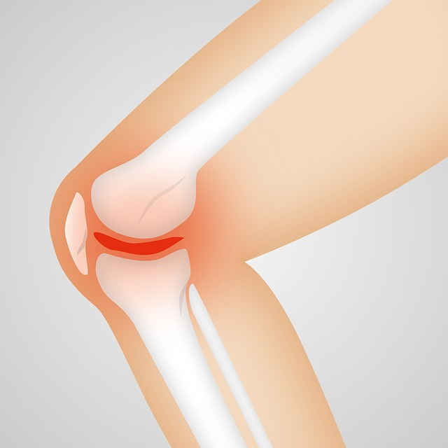 picture of the knee and MCL