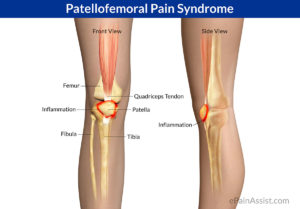 Patellofemoral Pain Syndrome picture