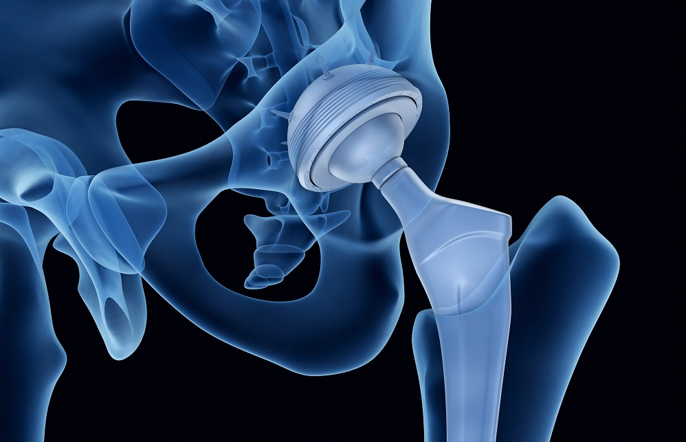 image of a total hip replacement on x rau