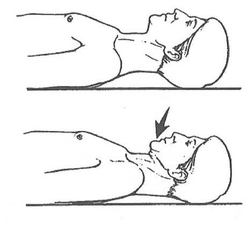 chin tuck exercise for posture