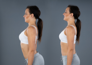 excessive lumbar lordosis for running