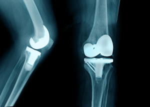 Total Knee Replacement Alignment