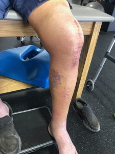 Rash on a leg 2 weeks after a knee replacement
