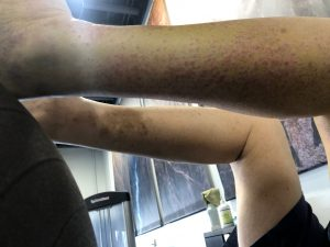 rash after a knee replacement