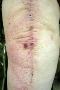 Metal allergy after a knee replacement