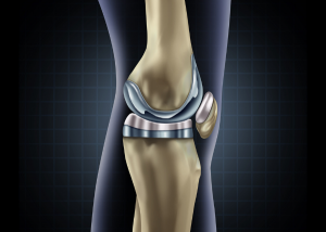 knee replacement materials