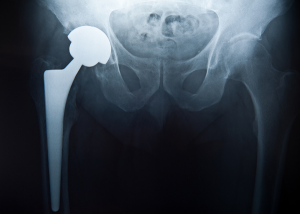 x-ray of a hip replacement