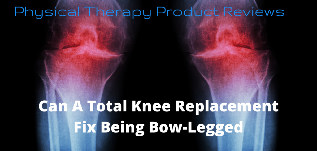 Can A Total Knee Replacement Fix Being Bow-Legged